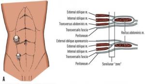 ventrale hernier i midtlinje