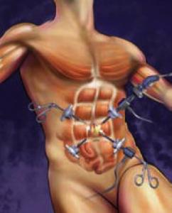 lap-rep-inc-hernia-2
