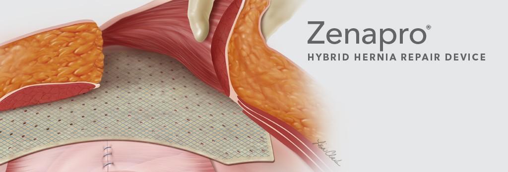 Mesh-Involving Hernia Treatments – Torrance Hernia Center